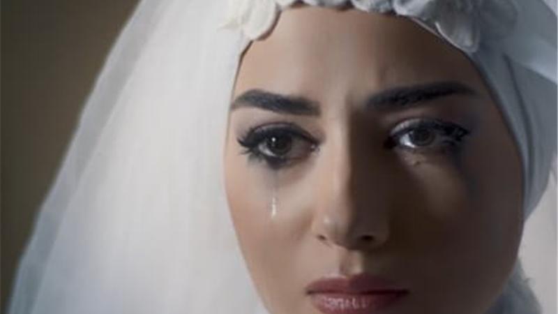 تغییرات عجیب  در چشمان پردیس پورعابدینی در سریال آقازاده