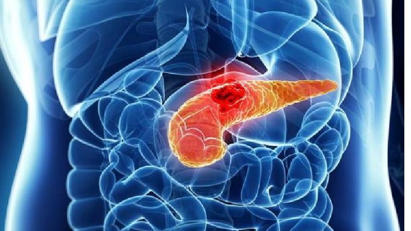 سرطان پانکراس یا لوزالمعده چیست و چه علایمی دارد