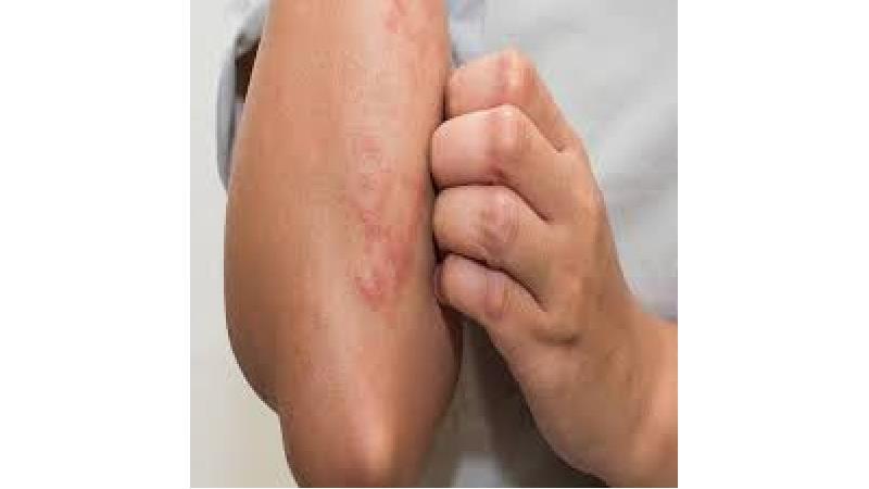 بثورات پوستی چیست و چطور درمان می شود