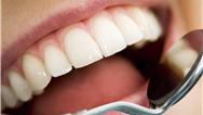 حساسیت دندانی را با این 4 روش در خانه از بین ببرید
