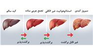 سبک زندگی را تغییر دهید کبد چرب درمان می شود