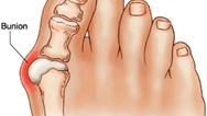 انحراف شست پا را چطور درمان کنیم