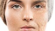 پوست از چه سنی پیر می شود و چطور از پیری پوست جلوگیر ی کنیم