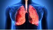 علایم  بارز سرطان ریه چیست