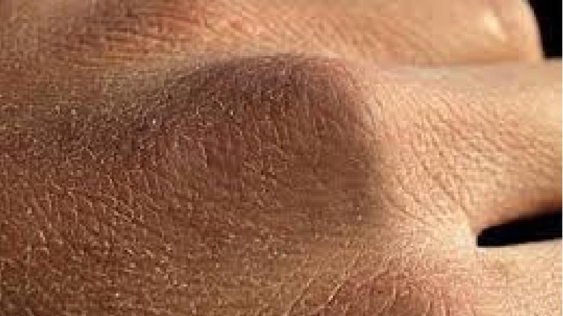 خشکی پوست