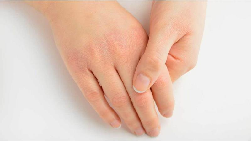 تاثیر ویتامین آ روی پوست